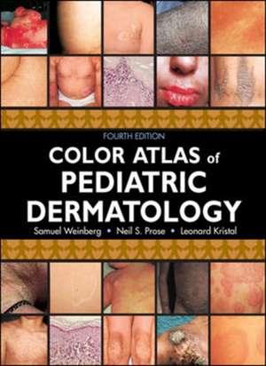 Color Atlas of Pediatric Dermatology