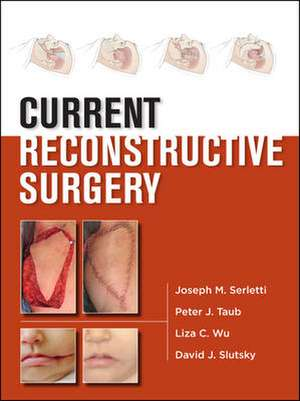 Current Reconstructive Surgery de Joseph Serletti