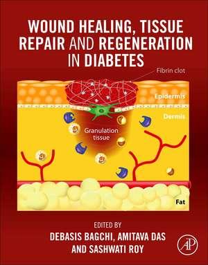 Wound Healing, Tissue Repair, and Regeneration in Diabetes de Debasis Bagchi