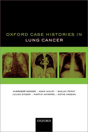 Oxford Case Histories in Lung Cancer de Himender K. Makker