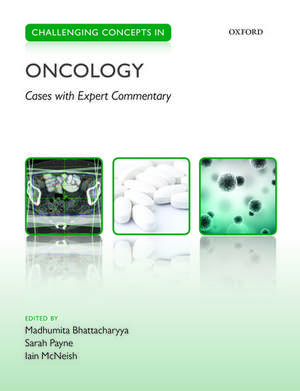 Challenging Concepts in Oncology