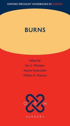 Burns de Iain S. Whitaker