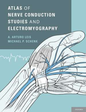 Atlas Of Nerve Conduction Studies And Electromyogr