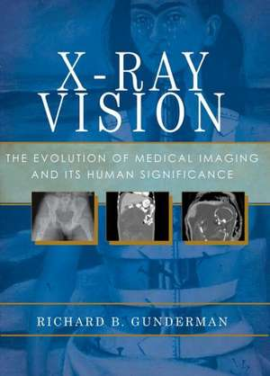 X-Ray Vision: The Evolution of Medical Imaging and Its Human Significance de Richard B. Gunderman