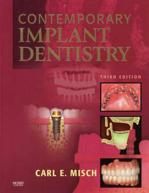 Contemporary Implant Dentistry de Carl E. Misch