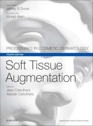 Soft Tissue Augmentation: Procedures in Cosmetic Dermatology Series de Alastair Carruthers