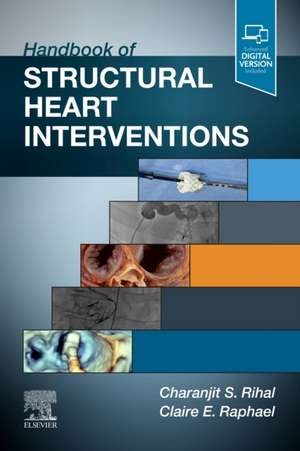 Handbook of Structural Heart Interventions imagine