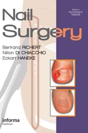 Nail Surgery imagine
