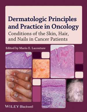 Dermatologic Principles and Practice in Oncology