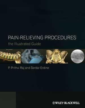 Pain–Relieving Procedures