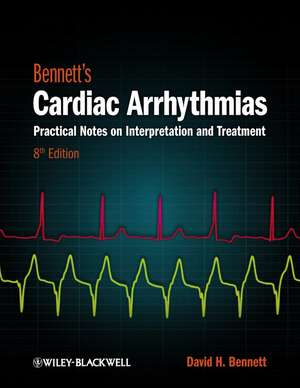 Bennett′s Cardiac Arrhythmias