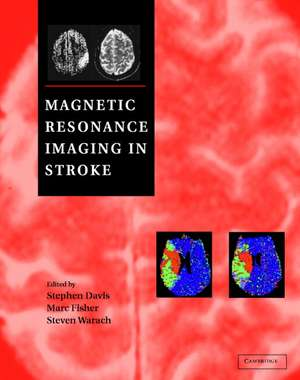 Magnetic Resonance Imaging in Stroke