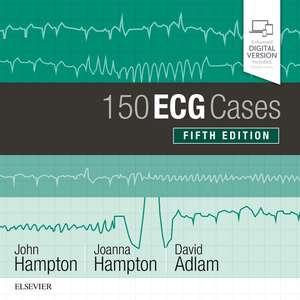 150 ECG Cases imagine