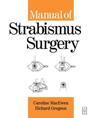 Manual of Strabismus Surgery