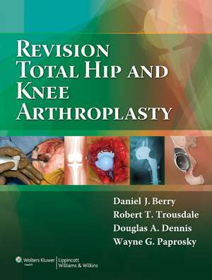 Revision Total Hip and Knee Arthroplasty