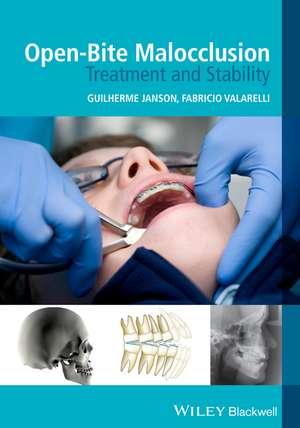 Open–Bite Malocclusion: Treatment and Stability de Guilherme Janson