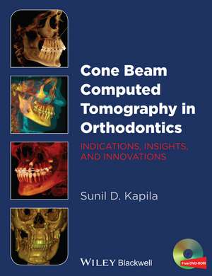 Cone Beam Computed Tomography in Orthodontics