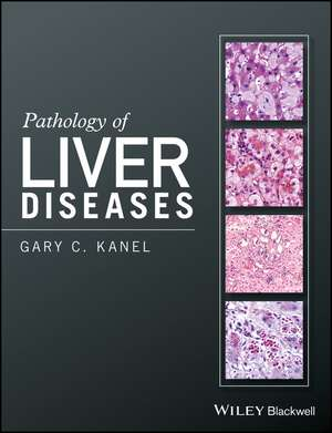 Pathology of Liver Diseases de Gary C. Kanel