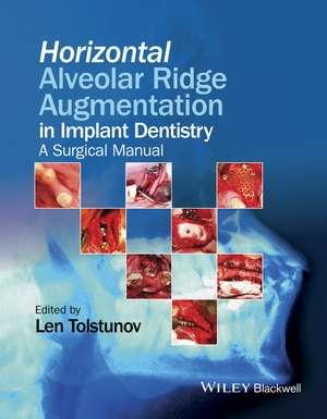 Horizontal Alveolar Ridge Augmentation in Implant Dentistry: A Surgical Manual de Len Tolstunov