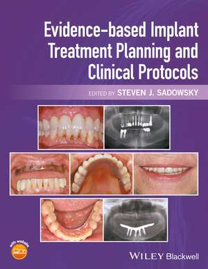 Evidence–based Implant Treatment Planning and Clinical Protocols