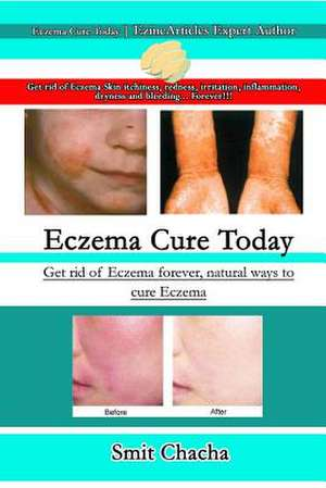 Eczema Cure Today - Get Rid of Eczema Forever Natural Ways to Cure Eczema de Smit Chacha