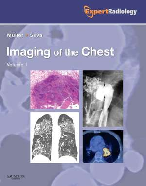 Imaging of the Chest, 2-Volume Set