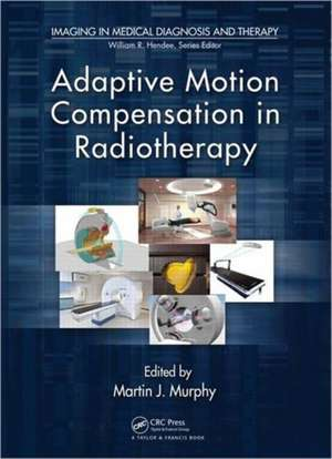 Adaptive Motion Compensation in Radiotherapy de Martin Murphy