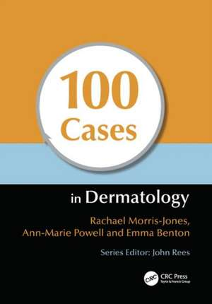 100 Cases in Dermatology