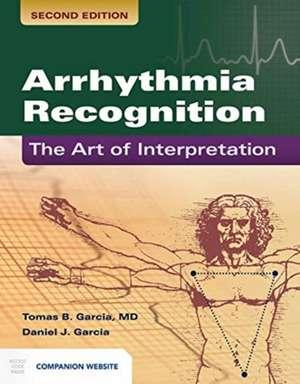 Arrhythmia Recognition: The Art of Interprepation imagine