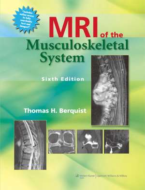 MRI of the Musculoskeletal System imagine
