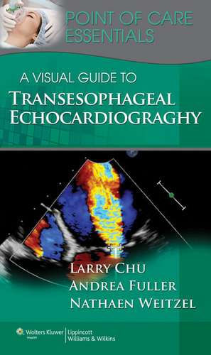 A Visual Guide to Transesophageal Echocardiography