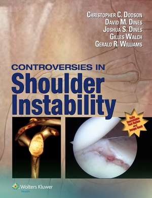Controversies in Shoulder Instability