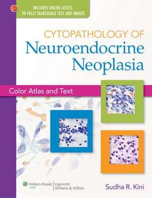 Cytopathology of Neuroendocrine Neoplasia