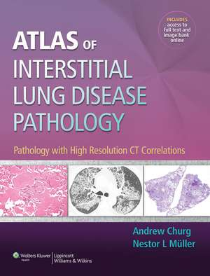 Atlas of Interstitial Lung Disease Pathology: Pathology with High Resolution CT Correlations de Andrew Churg MD