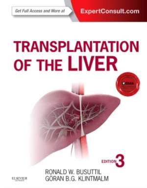 Transplantation of the Liver imagine