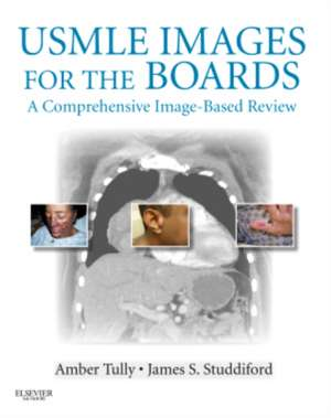 USMLE Images for the Boards: A Comprehensive Image-Based Review de Amber S. Tully