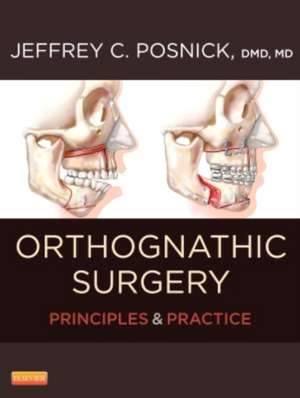 Orthognathic Surgery - 2 Volume Set