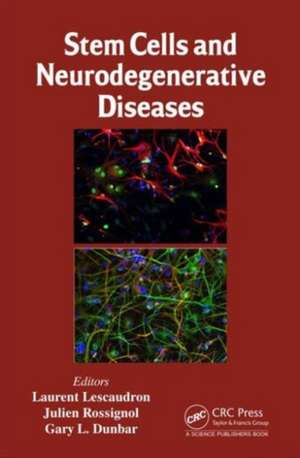 Stem Cells and Neurodegenerative Diseases