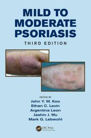 Mild to Moderate Psoriasis, Third Edition