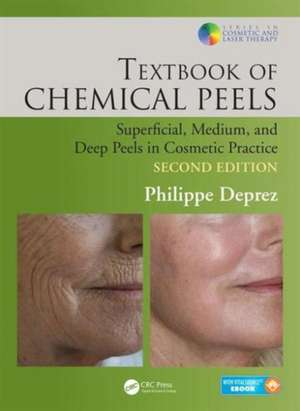 Textbook of Chemical Peels, Second Edition imagine