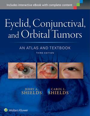 Eyelid, Conjunctival, and Orbital Tumors: An Atlas and Textbook