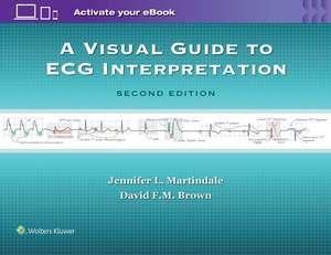 A Visual Guide to ECG Interpretation