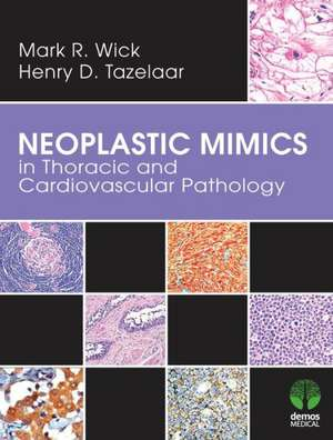 Neoplastic Mimics in Thoracic and Cardiovascular Pathology pdf