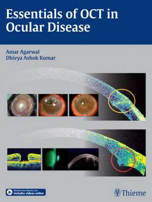 Essentials of OCT in Ocular Disease de Amar Agarwal