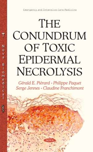 Conundrum of Toxic Epidermal Necrolysis
