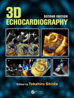 3D Echocardiography, Second Edition