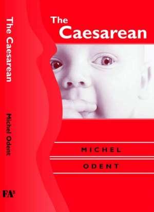 The Caesarean