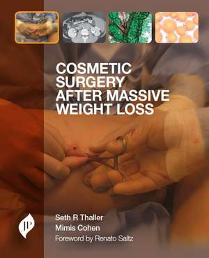 Cosmetic Surgery after Massive Weight Loss