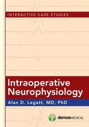 Intraoperative Neurophysiology