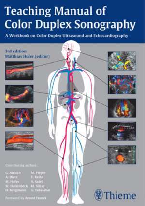 Teaching Manual of Color Duplex Sonography imagine